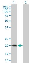 Western blot - SELS antibody (ab89760)