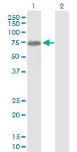 Western blot - 68kDa Neurofilament antibody (ab89761)