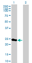 Western blot - PSMD8 antibody (ab89762)