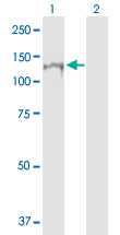 Western blot - RNF20 antibody (ab89764)