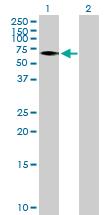 Western blot - Vitamin D Binding Protein antibody (ab89765)
