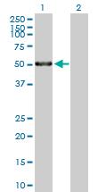 Western blot - MMP1 antibody (ab89767)
