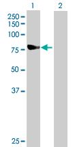 Western blot - Ndufs1 antibody (ab89768)