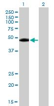 Western blot - Lysosomal acid lipase antibody (ab89771)