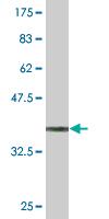 Western blot - STK3 antibody (ab89773)
