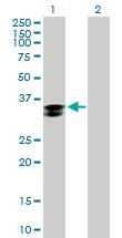 Western blot - Cathepsin Z antibody (ab89777)