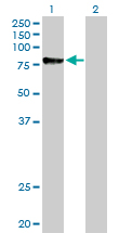 Western blot - Calpain 1 antibody (ab89778)