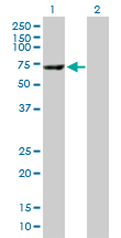 Western blot - Liver Carboxylesterase 1 antibody (ab89779)