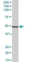 Western blot - CYP27A1 antibody (ab89781)