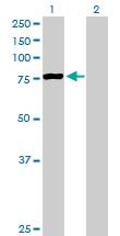 Western blot - PCCA antibody (ab89784)