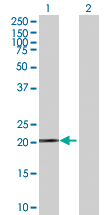 Western blot - Ferritin Heavy Chain antibody (ab89787)