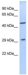 Western blot - LIX1 antibody (ab89798)