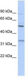 Western blot - PRSS35 antibody (ab89800)
