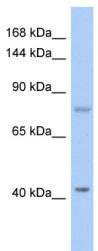 Western blot - NSP3 antibody (ab89803)