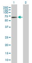 Western blot - Methionine Aminopeptidase 2  antibody (ab89808)