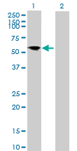 Western blot - SNT2 antibody (ab89809)