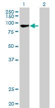 Western blot - RECQ1 antibody (ab89817)