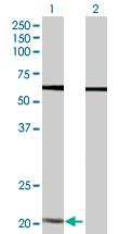 Western blot - Anti-Lipocalin-2 / NGAL antibody (ab89819)