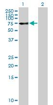 Western blot - Optineurin antibody (ab89820)