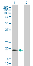 Western blot - ARMER antibody (ab89822)