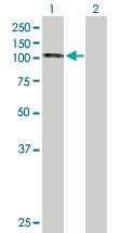 Western blot - Hsp105 antibody (ab89823)