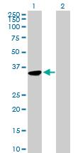 Western blot - Monoacylglycerol Lipase antibody (ab89824)