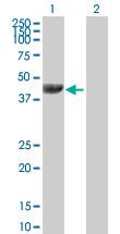 Western blot - VASP antibody (ab89829)