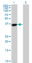 Western blot - AKR1C3 antibody (ab89830)