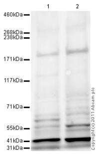 Western blot - PHLPP antibody (ab89833)