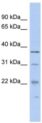 Western blot - Malignant T cell amplified sequence 1 antibody (ab89839)