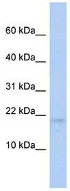 Western blot - RFESD antibody (ab89841)