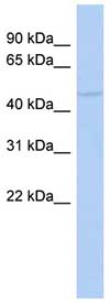 Western blot - RASGEF1C antibody (ab89844)