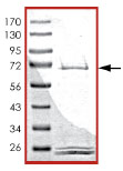 SDS-PAGE - PHKG2 protein (Active) (ab89857)
