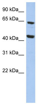 Western blot - EFHA2 antibody (ab89868)