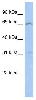 Western blot - EFHA2 antibody (ab89869)