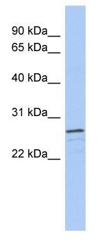 Western blot - VSTM2A antibody (ab89871)