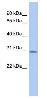 Western blot - VSTM2A antibody (ab89872)