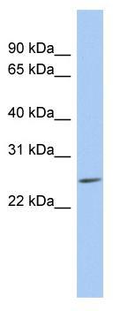 Western blot - LYPD5 antibody (ab89874)