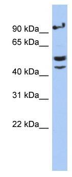 Western blot - ChT1 antibody (ab89875)