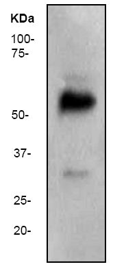 Western blot - Anti-Wilms Tumor Protein antibody [CAN-R9(IHC)-56-2] (ab89901)