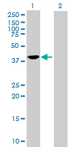 Western blot - SEC14 like protein 2 antibody (ab89914)