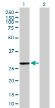 Western blot - CLIC2 antibody (ab89916)