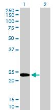 Western blot - HMG4 antibody (ab89918)