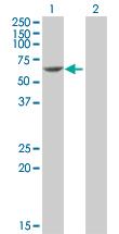 Western blot - PDCD4 antibody (ab89940)