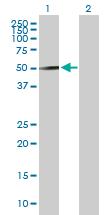 Western blot - Reptin/TIP49B/RUVB2 antibody (ab89942)