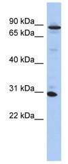 Western blot - KANK3 antibody (ab89950)