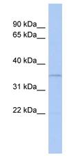Western blot - CLEC4G antibody (ab89951)