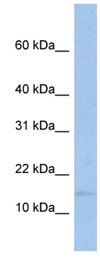 Western blot - TRAPPC2 antibody (ab89952)