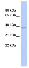 Western blot - SOX7 antibody (ab89954)