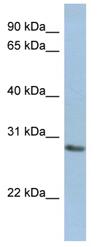 Western blot - NANP antibody (ab89955)